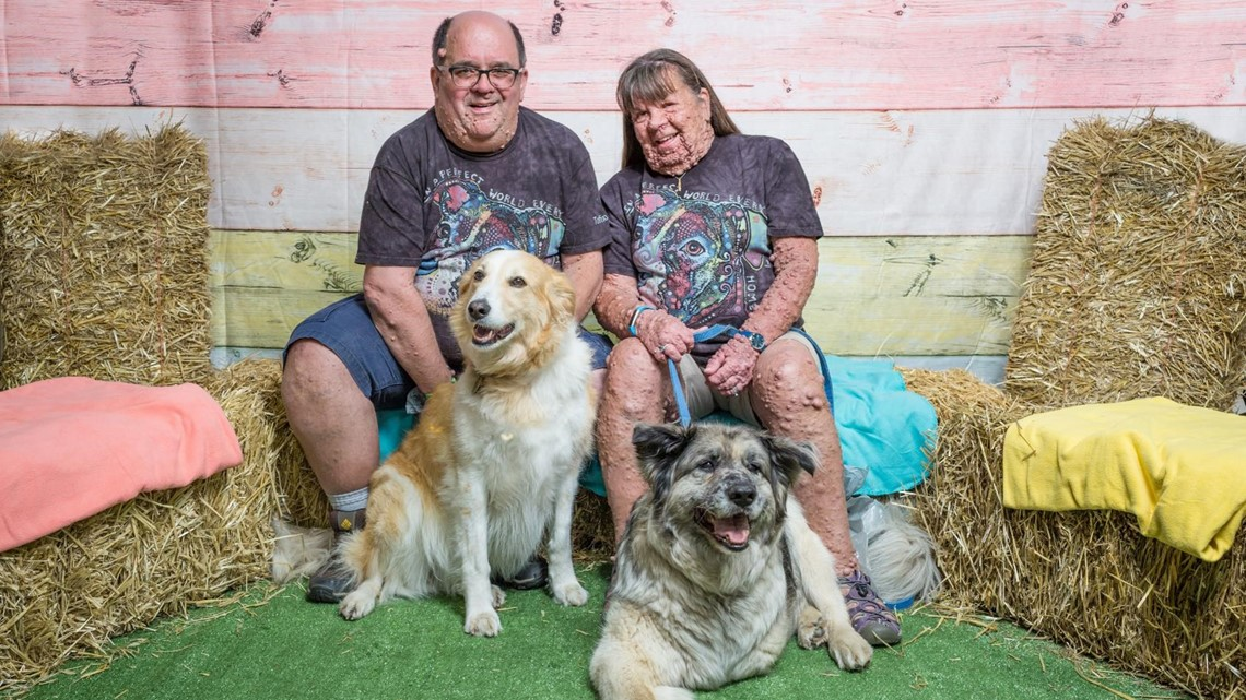 Couple embraces life with full-body tumor condition