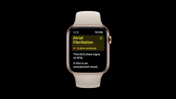 Apple Watch Afib Screen
