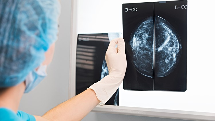 Buddy to Buddy: The state of breast cancer in 2021