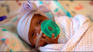 Girl believed to be tiniest newborn weighed about the same as an apple