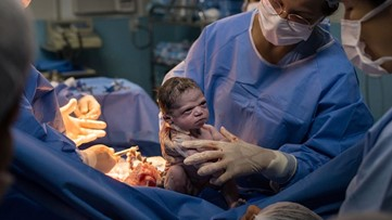 Feisty baby stares down doctors seconds after birth